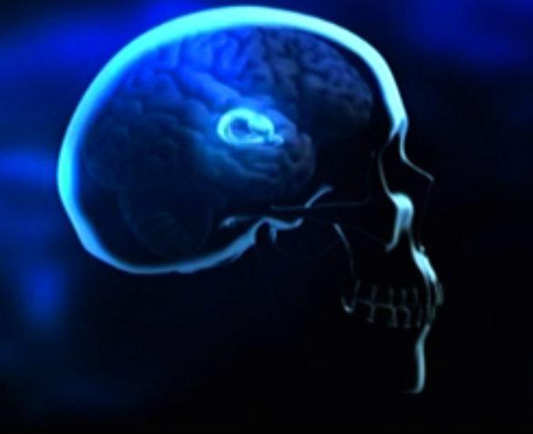 Drogues et cerveau Documentaire